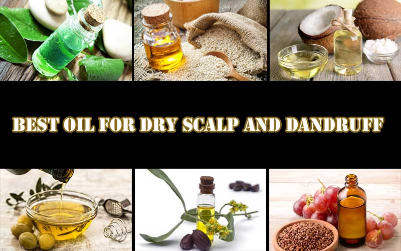 Best-Oil-For-Dry-Scalp-And-Dandruff