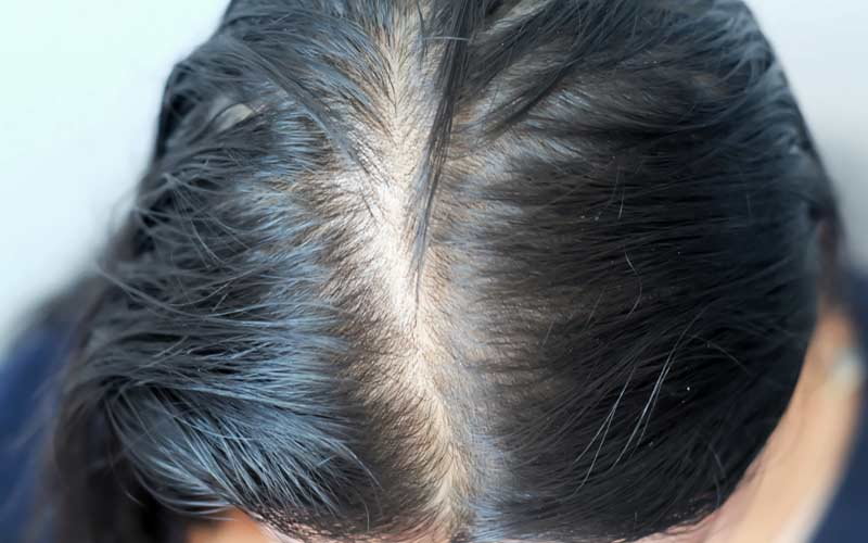 Can-Oily-Hair-Cause-Hair-Loss